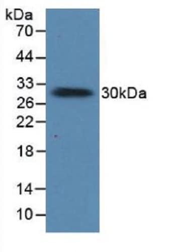 Western blot - Anti-Prolactin/PRL antibody (ab231240)