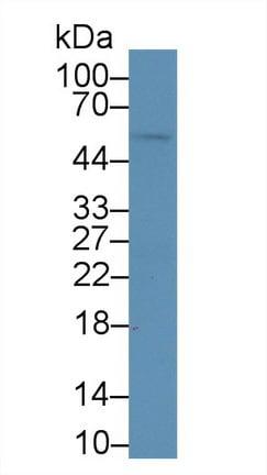 Western blot - Anti-Alanine Transaminase antibody (ab231241)