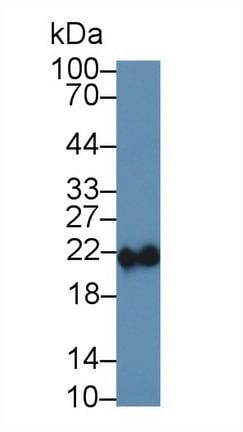 Western blot - Anti-Ferritin Heavy Chain antibody (ab231253)