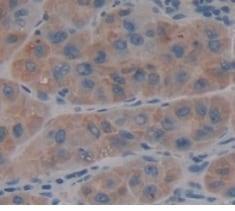 Immunohistochemistry (Formalin/PFA-fixed paraffin-embedded sections) - Anti-CRYL1 antibody (ab231257)