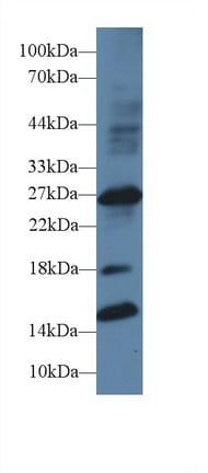 Western blot - Anti-IGFBP1 antibody (ab231259)