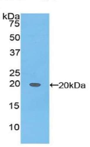 Western blot - Anti-alpha 1 Fetoprotein antibody (ab231264)