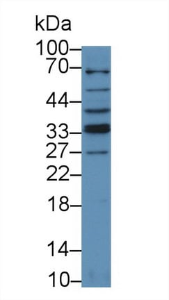 Western blot - Anti-TRAIL antibody (ab231265)
