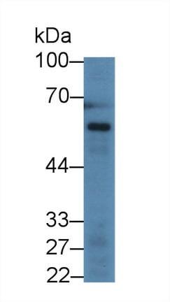 Western blot - Anti-Angiopoietin 1 antibody (ab231269)