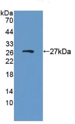Western blot - Anti-SRPRB antibody (ab231276)