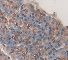 Immunohistochemistry (Formalin/PFA-fixed paraffin-embedded sections) - Anti-CTRB2 antibody (ab231284)