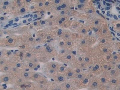 Immunohistochemistry (Formalin/PFA-fixed paraffin-embedded sections) - Anti-Biglycan antibody (ab231297)