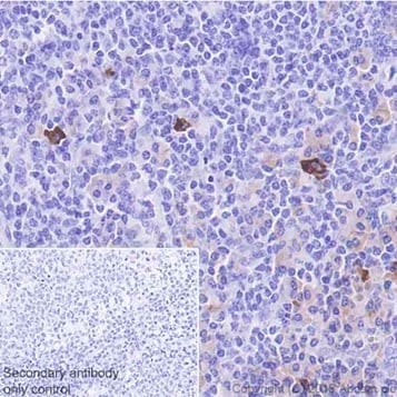 Immunohistochemistry (Formalin/PFA-fixed paraffin-embedded sections) - Anti-Interferon gamma antibody [EPR21704] - BSA and Azide free (ab231301)