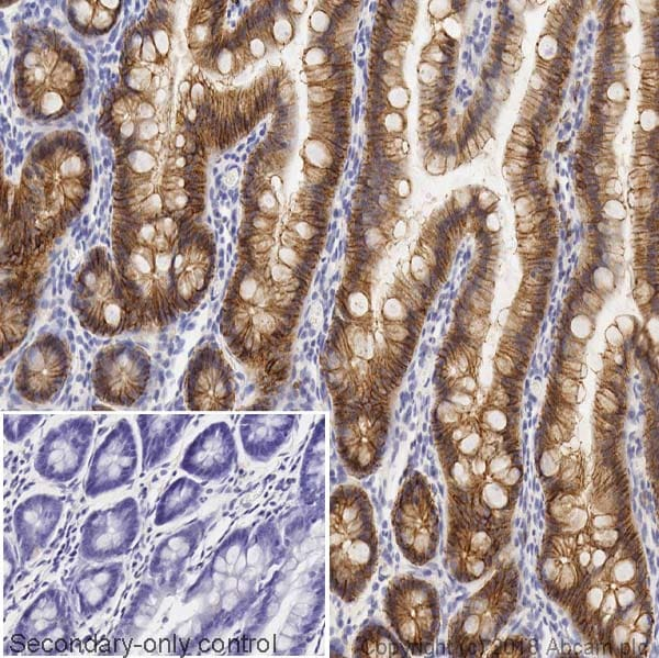 Immunohistochemistry (Formalin/PFA-fixed paraffin-embedded sections) - Anti-E Cadherin antibody [4A2] (ab231303)
