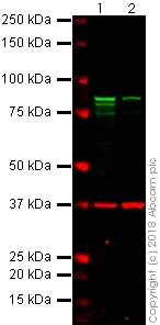 Western blot - Anti-gamma Catenin antibody [11E4] (ab231304)