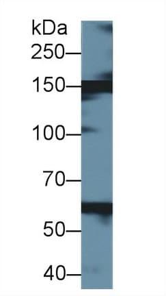 Western blot - Anti-Xanthine Oxidase antibody (ab231316)