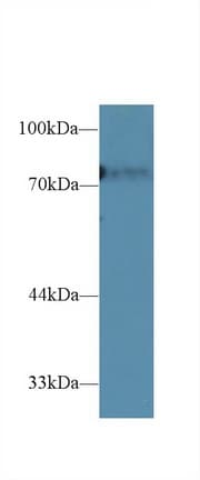 Western blot - Anti-CD2AP antibody (ab231320)