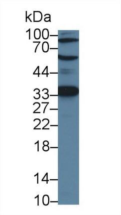 Western blot - Anti-ACD antibody (ab231330)