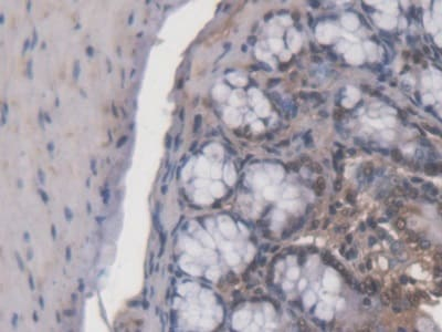 Immunohistochemistry (Formalin/PFA-fixed paraffin-embedded sections) - Anti-ACD antibody (ab231330)