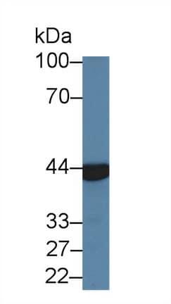 Western blot - Anti-ACY-1 antibody (ab231332)