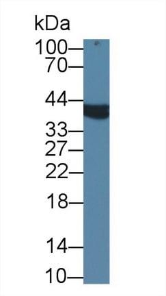 Western blot - Anti-AMACR antibody (ab231333)