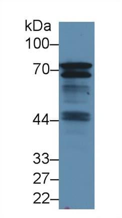 Western blot - Anti-BLNK antibody (ab231335)