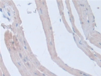 Immunohistochemistry (Formalin/PFA-fixed paraffin-embedded sections) - Anti-Intersectin 1 antibody (ab231338)