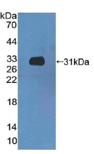 Western blot - Anti-CCDC60 antibody (ab231343)