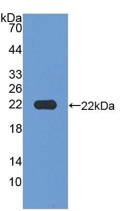 Western blot - Anti-MAGP1 antibody (ab231344)