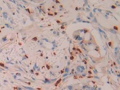 Immunohistochemistry (Formalin/PFA-fixed paraffin-embedded sections) - Anti-Azurocidin antibody (ab231350)