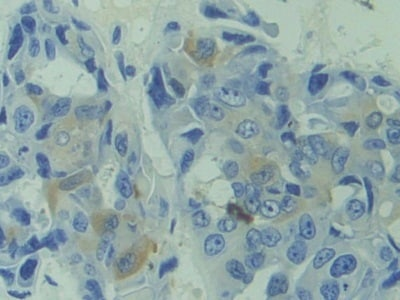 Immunohistochemistry (Formalin/PFA-fixed paraffin-embedded sections) - Anti-calcyphosine antibody (ab231355)