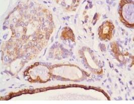 Immunohistochemistry (Formalin/PFA-fixed paraffin-embedded sections) - Anti-Cytokeratin 18 antibody [DC10] (ab231431)