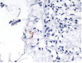Immunohistochemistry (Formalin/PFA-fixed paraffin-embedded sections) - Anti-Helicobacter pylori antibody [SPM526] (ab231433)
