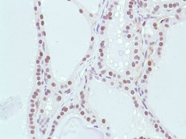 Immunohistochemistry (Formalin/PFA-fixed paraffin-embedded sections) - Anti-MSH2 antibody [SP46] (ab231437)