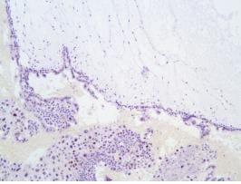 Immunohistochemistry (Formalin/PFA-fixed paraffin-embedded sections) - Anti-p57 Kip2 antibody [SP118] (ab231439)