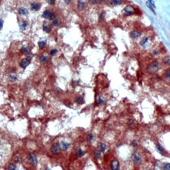 Immunohistochemistry (Formalin/PFA-fixed paraffin-embedded sections) - Anti-Inhibin alpha antibody - N-terminal (ab231459)