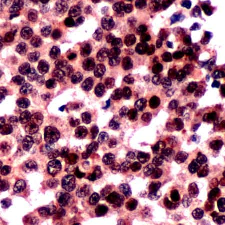 Immunohistochemistry (Formalin/PFA-fixed paraffin-embedded sections) - Anti-FOXO3A antibody - N-terminal (ab231462)
