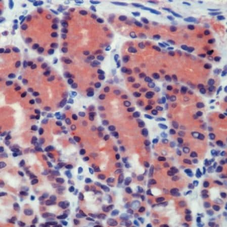 Immunohistochemistry (Formalin/PFA-fixed paraffin-embedded sections) - Anti-Caspase-8 antibody - N-terminal (ab231475)