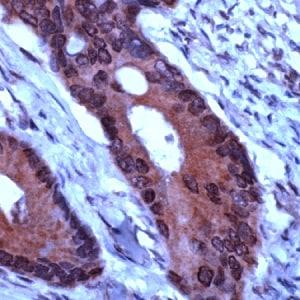 Immunohistochemistry (Formalin/PFA-fixed paraffin-embedded sections) - Anti-TIMP1 antibody (ab231485)