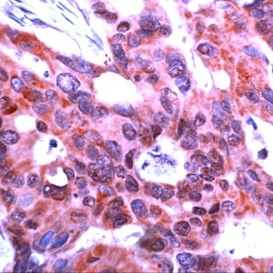 Immunohistochemistry (Formalin/PFA-fixed paraffin-embedded sections) - Anti-ICAD antibody - N-terminal (ab231496)