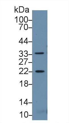 Western blot - Anti-HSPB2 antibody (ab231520)