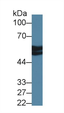Western blot - Anti-Antithrombin III/ATIII antibody (ab231525)