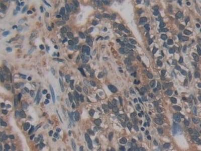Immunohistochemistry (Formalin/PFA-fixed paraffin-embedded sections) - Anti-AATK antibody (ab231529)