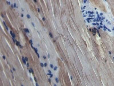 Immunohistochemistry (Formalin/PFA-fixed paraffin-embedded sections) - Anti-Myoglobin antibody (ab231530)