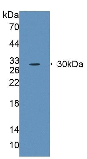 Western blot - Anti-ABCB10 antibody (ab231535)