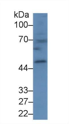 Western blot - Anti-Carboxypeptidase B/CPB antibody (ab231536)