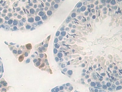 Immunohistochemistry (Formalin/PFA-fixed paraffin-embedded sections) - Anti-Carboxypeptidase B/CPB antibody (ab231536)