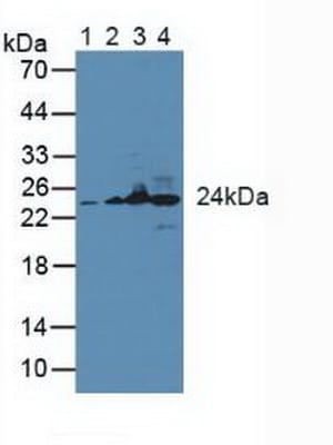 Western blot - Anti-GSTK1 antibody (ab231549)