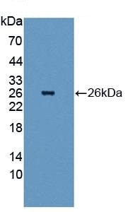 Western blot - Anti-Hsp27 antibody (ab231552)