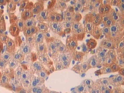 Immunohistochemistry (Formalin/PFA-fixed paraffin-embedded sections) - Anti-IL-18R1 antibody (ab231554)