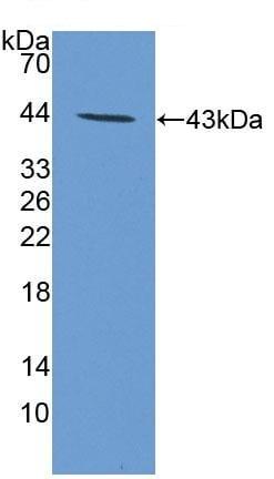 Western blot - Anti-PTH2R antibody (ab231556)