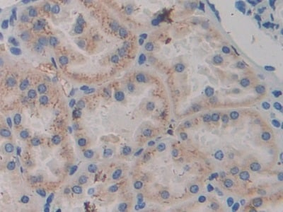 Immunohistochemistry (Formalin/PFA-fixed paraffin-embedded sections) - Anti-ABP1 antibody (ab231558)