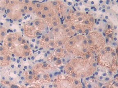 Immunohistochemistry (Formalin/PFA-fixed paraffin-embedded sections) - Anti-FUT4 antibody (ab231561)