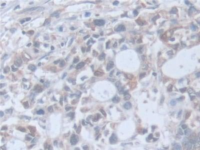 Immunohistochemistry (Formalin/PFA-fixed paraffin-embedded sections) - Anti-Retinoic Acid Receptor alpha antibody (ab231562)