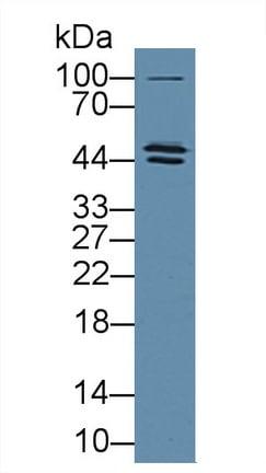 Western blot - Anti-LPAP antibody (ab231563)